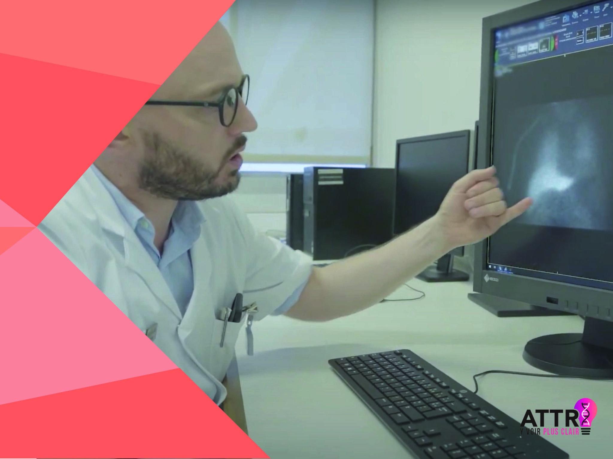 en cardiologie au CHU de Toulouse avec le Pr O. Lairez