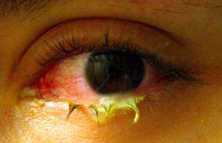 atteintes ophtalmologiques de l'amylose héréditaire