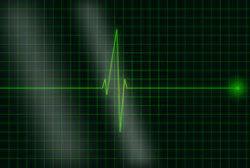 suivi cardiaque de la maladie ATTR
